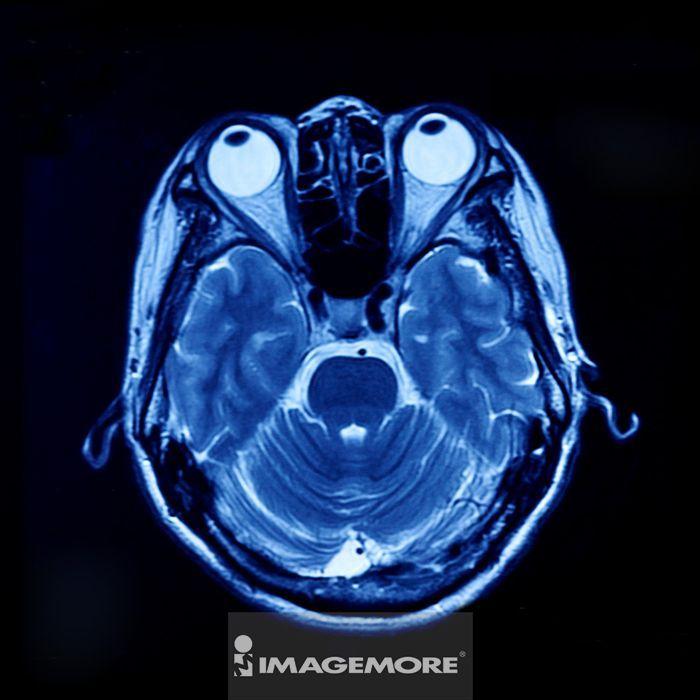 人物头部,核磁共振扫描